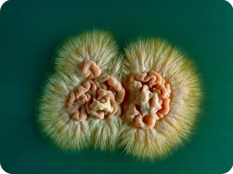 Новый антифунгальный препарат для терапии инвазивных грибковых инфекций проявил во время клинических испытаний высокую эффективность
