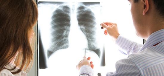 Врач-пульмонолог на страже здоровья органов дыхательной системы