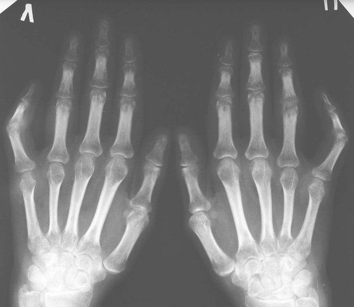 Отчего дети страдают ревматоидным артритом и как его распознать
