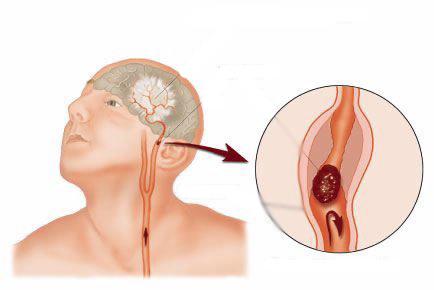 Эндоваскулярная хирургия как метод борьбы с аневризмами