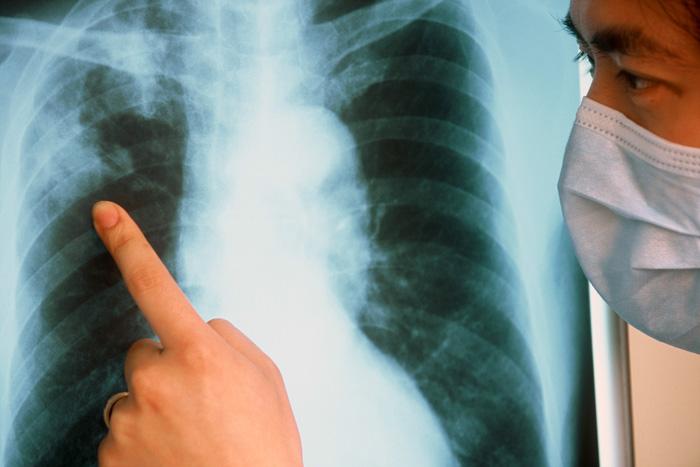Медики смогут диагностировать туберкулез по дыханию человека