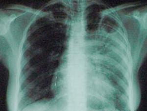 Вакцинация подростков и взрослых более эффективна в борьбе с туберкулезом