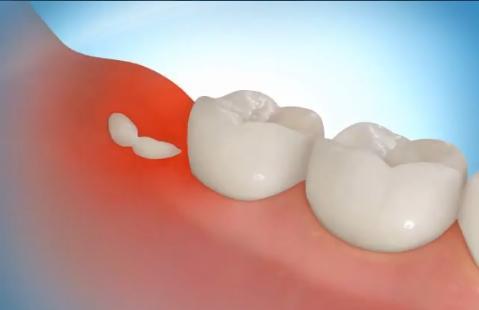 «Зубы мудрости»: как поступить с ними мудро?