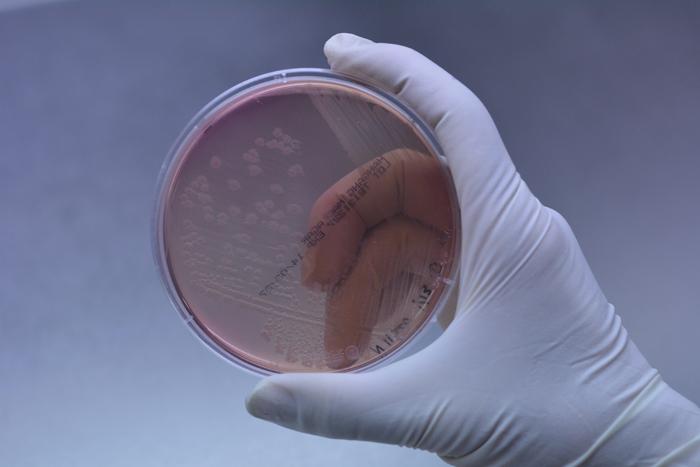 От бактерии шегелла продолжают страдать дети