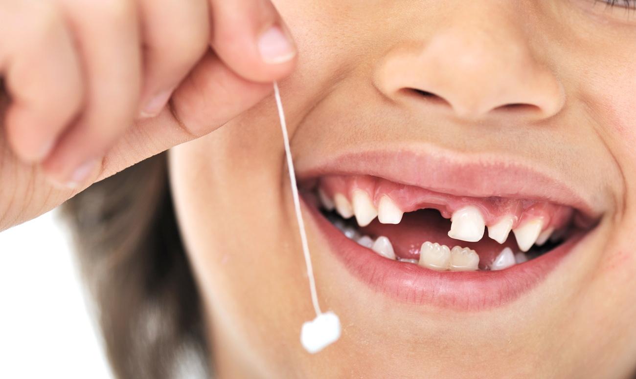 Выпадение молочных зубов — стоит ли торопить?
