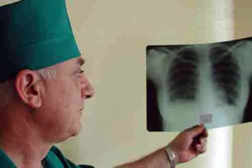 Блокаторы ангиогенеза могут помочь в лечении тяжелых форм туберкулеза