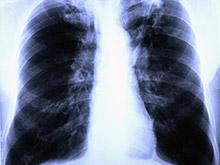 Агрессивный и устойчивый туберкулез может стать новой Эболой