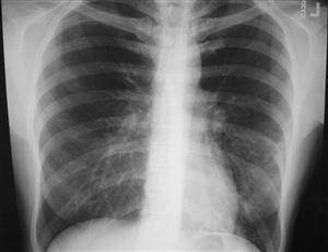 Доказана способность метилпреднизолона улучшать результаты лечения внебольничной пневмонии