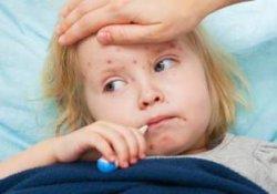 Корь может привести к слепоте – прививки обязательны