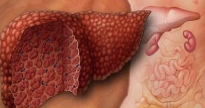 Цирроз печени: основные правила диетического питания