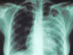 В 2014 году смертность от туберкулеза в РФ снизилась на 11%