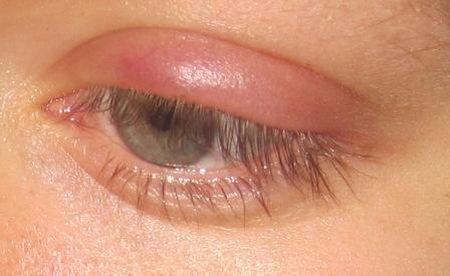 Как правильно лечить ячмень на глазу?