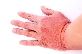 Причины контактного дерматита