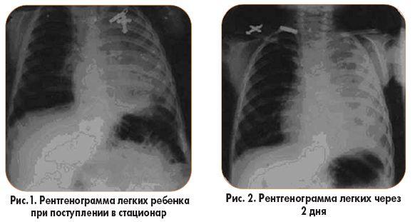 Что делать, если есть подозрение на пневмонию