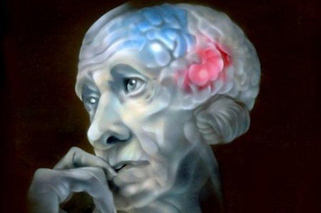 Можно ли остановить болезнь Альцгеймера