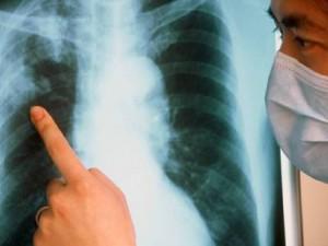 Туберкулез все чаще поражает горожан трудоспособного возраста