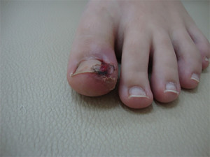 Лечение вросшего ногтя у хирурга