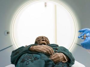 Венгерские мумии помогли уточнить сроки эпидемий туберкулеза
