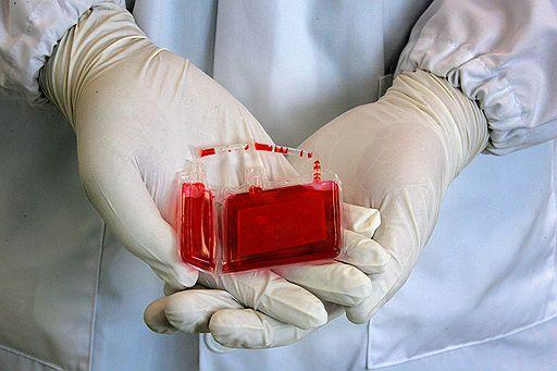 Переливание старой донорской крови повышает риск инфекций
