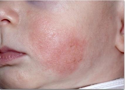 Атопический дерматит: симптомы