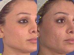 Как лучше всего избавиться от шрамов на лице?