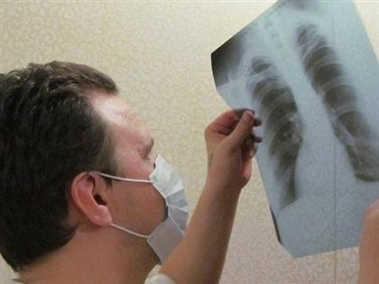 В Казахстане снизился показатель заболеваемости туберкулезом