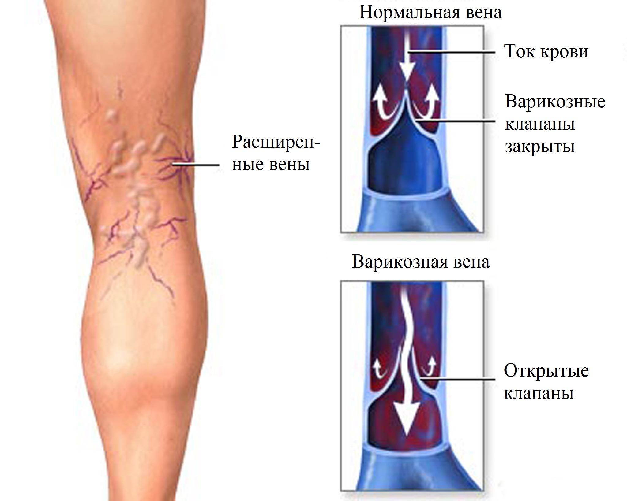 Варикозная болезнь и гормоны