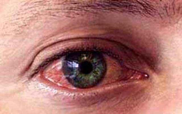 Как вылечить воспаление глаз после сварки?