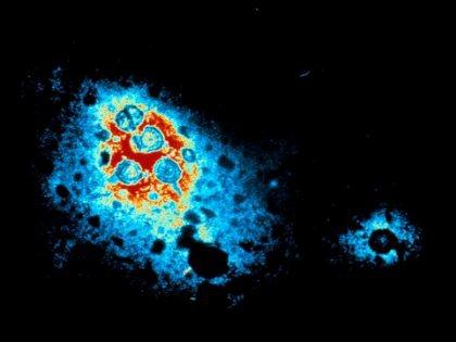 Гепатит С успешно лечат комбинацией из трех лекарств