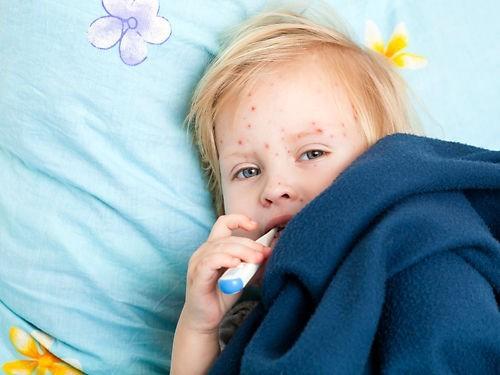 Вакцинация против кори снижает смертность от других заболеваний