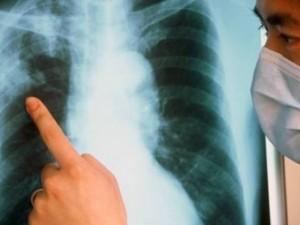 Лекарство от туберкулеза способно повысить эффективность когнитивно-поведенческой терапии