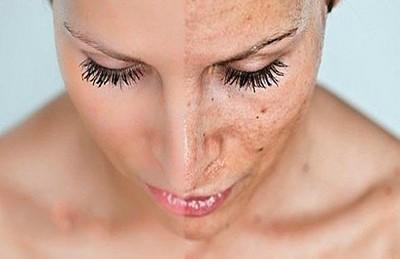Верный путь избавления от шрамов и рубцов на коже