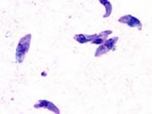 Низкая успеваемость ребенка связана с паразитарными инфекциями