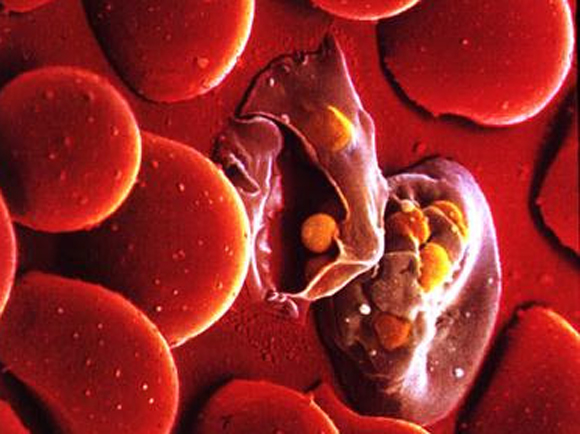 10 фактов о малярии