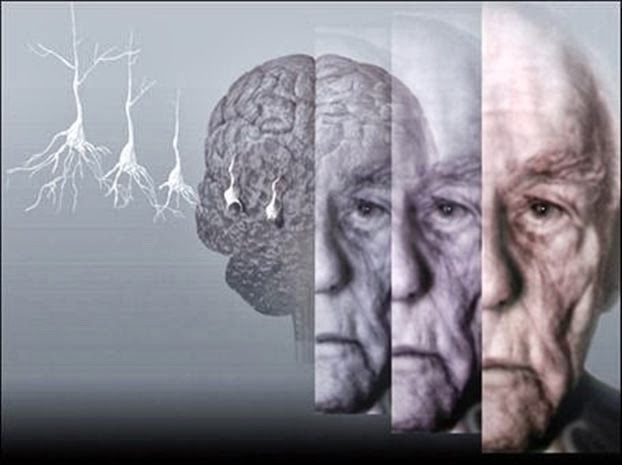 Профилактика деменции и болезни Альцгеймера