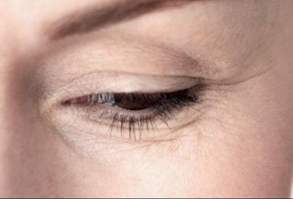 Почему вокруг глаз морщинки заметнее?