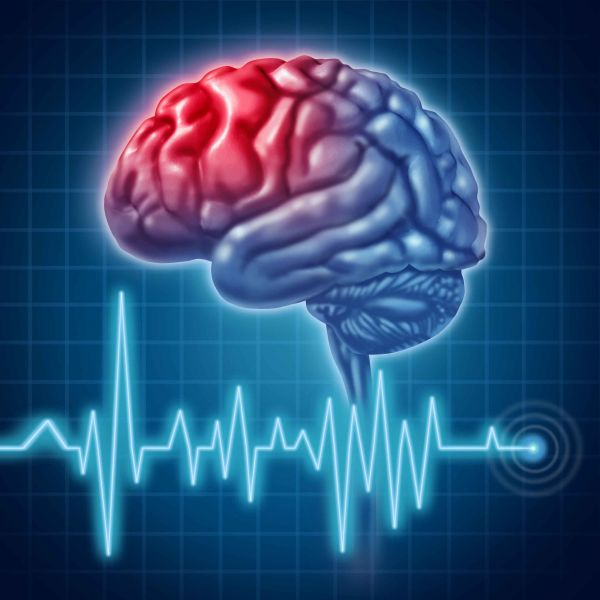 Инсульт – факторы риска