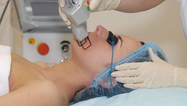 Особенности лазерной шлифовки тела и лица