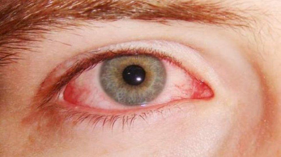 От глазных инфекций спасет тушь