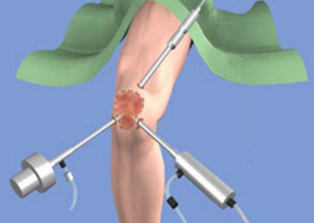 Операции по артроскопии