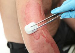 Ученые предлагают лечить инфекции ожоговых ран… разбавленным уксусом