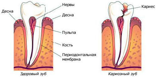 При пульпите поможет только поход к стоматологу