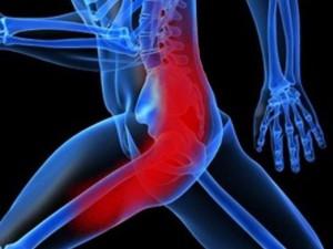Невралгия седалищного нерва