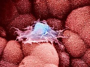 Исследователи нашли новое средство иммунной системы