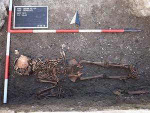Сифилис появился в Европе задолго до открытия Америки
