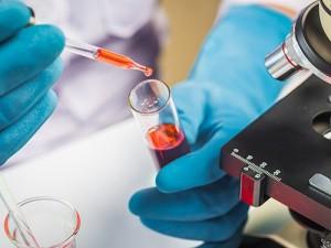Получены новые данные о происхождении гепатита А