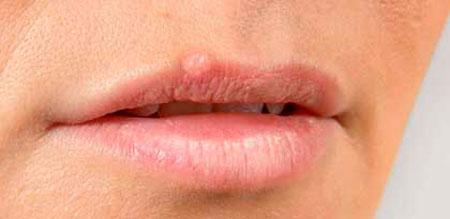 Как бороться с простудой на губах