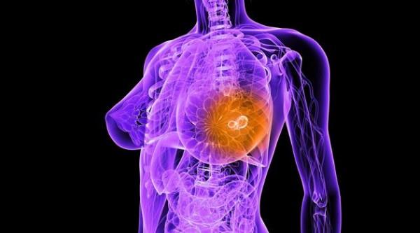 Лекарство от рака молочной железы