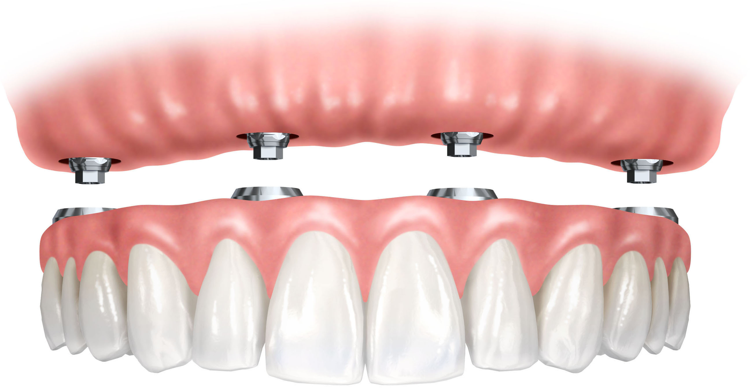 Fotos de proteses fixas dentarias 69