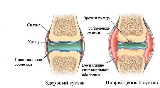 Ревматоидный артрит: лечение силами природы